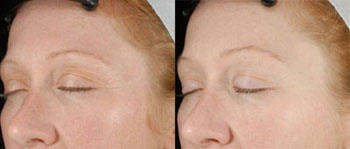 ultherapy before and after 1